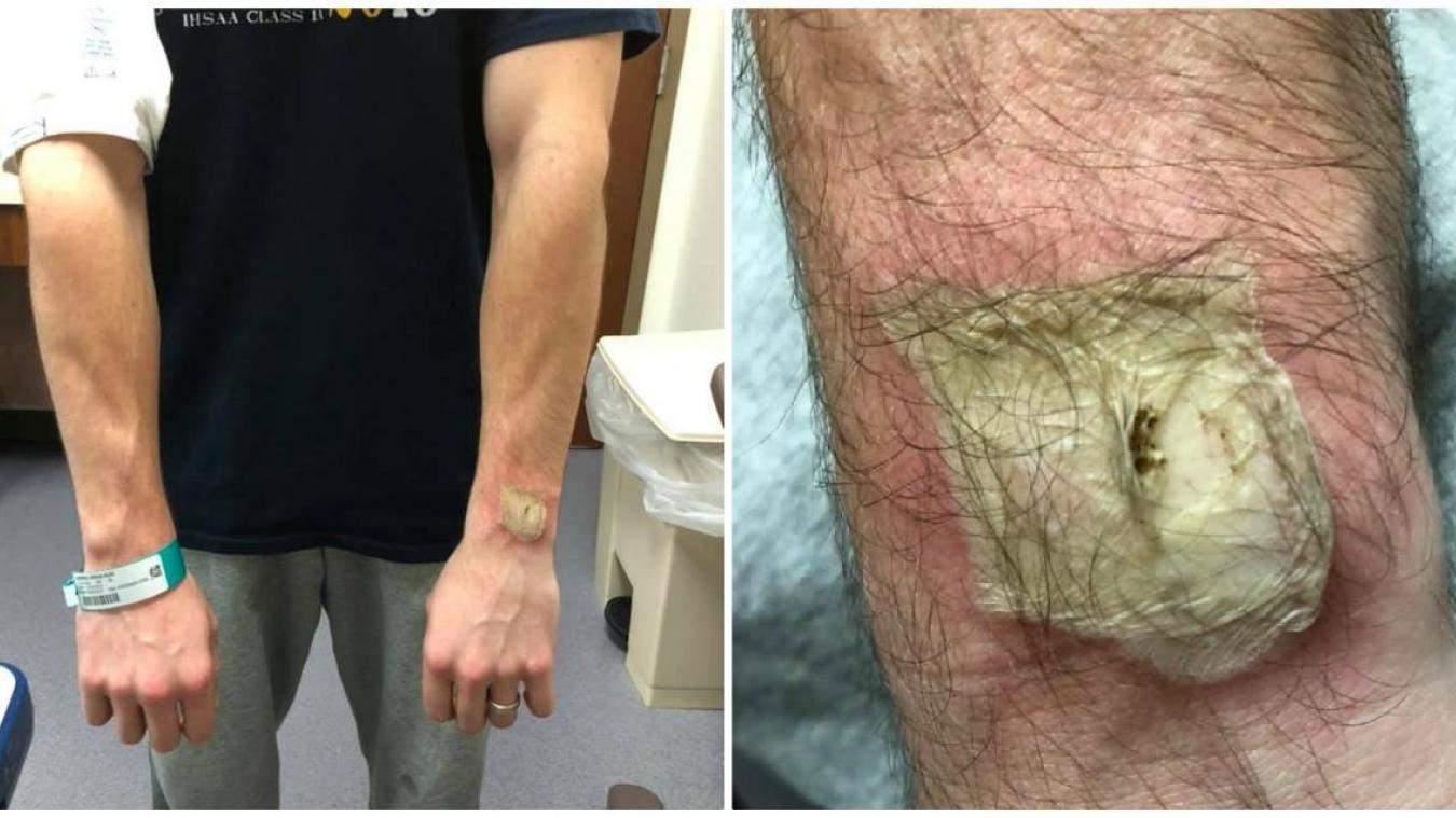 Un homme gravement brûlé par sa montre connectée