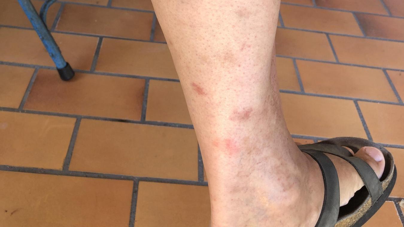Luc a les jambes marquées par les multiples piqûres qui en plus mettent du temps à s'effacer.