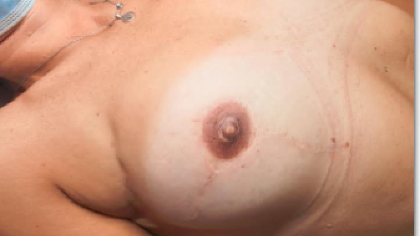 Prévessin-Moëns : Mélanie Fournier, tatoueuse, intervient auprès des femmes atteintes du cancer du sein