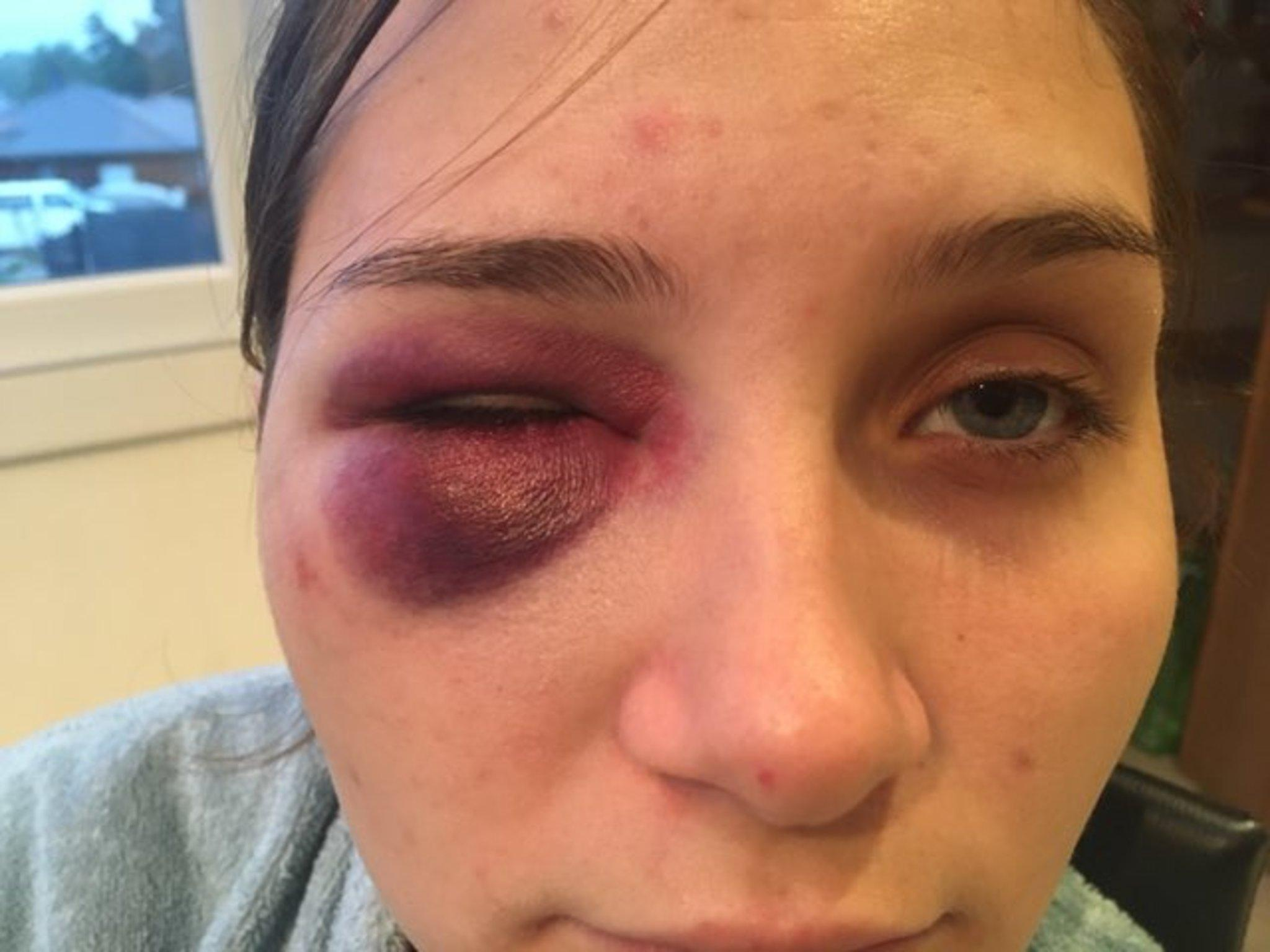 Rebecca a eu sept jours d'incapacité totale de travail (ITT) et un impressionnant hématome à l'œil droit.